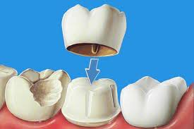 dental crown