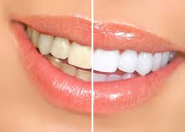 teeth whitening1