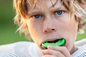 sports mouthguard 1