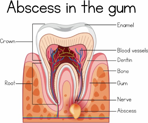abscess tooth 1s
